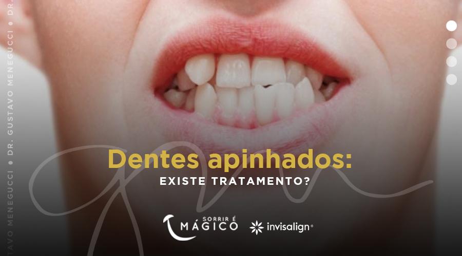 Dentes apinhados: existe tratamento?